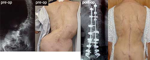 Can mild adult scoliosis sorry
